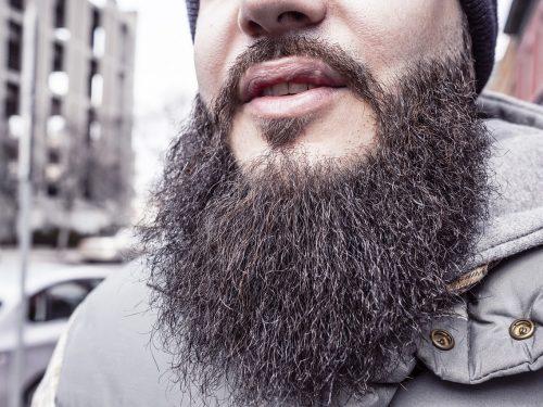 Forfora nella barba cause e rimedi